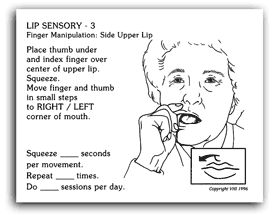 Vhi pc kits oral sensory motor treatment kit oral for Oral motor speech therapy