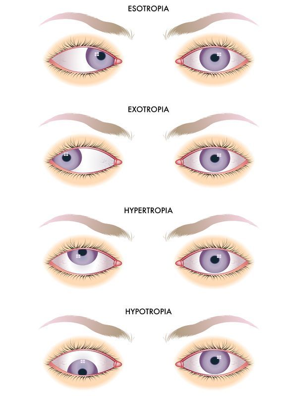 Hypertropia is characterized by the misalignment of the eyes, in which the visual axis of one eye is higher than the other. Causes Hypertropia may be a congenital or acquired condition. Treatment for hypertropia may include prescription of eyeglasses to correct the refractive errors. Patching is used particularly in treating amblyopia in kids and diplopia in adults. Botulinum toxin botox injection and surgical correction are also recommended.