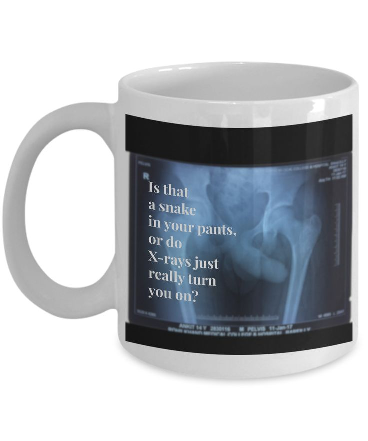 Unique xray novelty mugs reveal your inner self—literally! Medically accurate. Throckmorton's Sign.