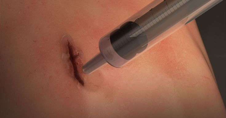 Researchers create a fast-sealing surgical 'glue' for closing wounds      The glue is so stretchy it's able to keep a wound sealed on a fully inflated lung. https://www.engadget.com/2017/10/07/fast-sealing-surgical-glue-closing-wounds/?utm_campaign=crowdfire&utm_content=crowdfire&utm_medium=social&utm_source=pinterest