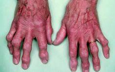 Эффективное лечение артроза кистей рук народными средствами