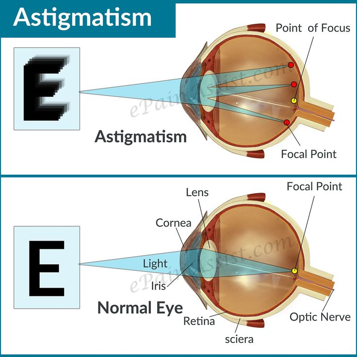 Astigmatism Read More: http://www.epainassist.com/eye-pain/astigmatism-causes-types-symptoms-treatment-lenses-refractive-surgery