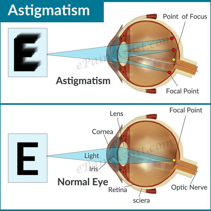 Astigmatism Read More: http://www.epainassist.com/eye-pain/astigmatism-causes-types-symptoms-treatment-lenses-refractive-surgery