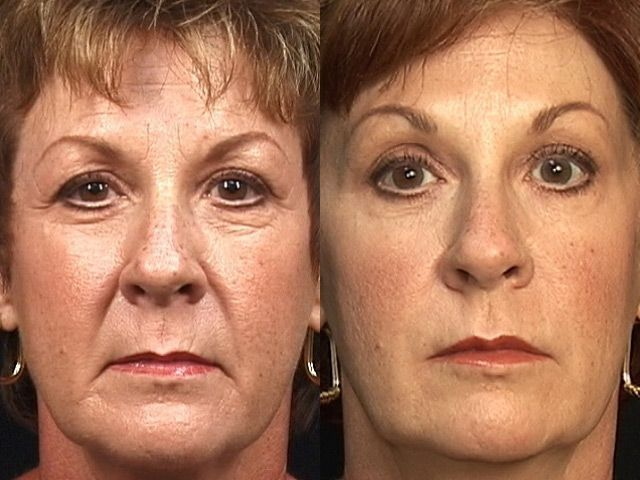 Organic Facelift Methods To Appear More Youthful Performing Face Renewal Workouts