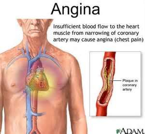 Angina, also known as angina pectoris, is a painful but temporary heart condition caused primarily by constriction of veins and arteries.  Once these blood vessels become tight, the heart's oxygen supply is reduced and the result is pain in the chest, jaw, neck, throat or arms. The pain usually subsides once the blood flow is restored. In essence, angina is the cardiac equivalent of a headache. #health #fitness #angina #heartattack #diet #exercise #organic #vegan #healthy #weightloss