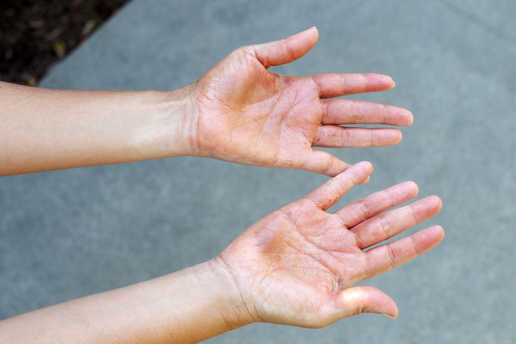 How to Remove Self Tanner Stains From My Hands: wash w/ soap n H2O, don't dry; sprinkle baking soda on loofa, scrub tanner off hands; then use exfoliating scrub, rinse well, dry.