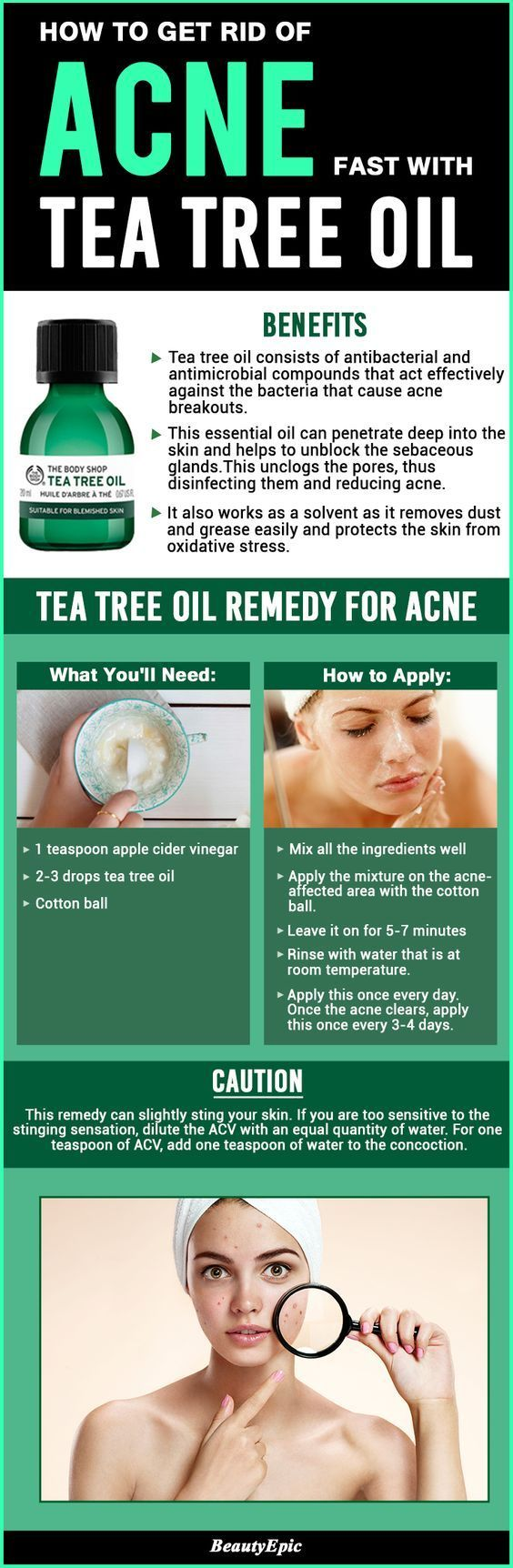 tea tree oil for acne :Tea tree oil is a simple home remedy to your big acne problem. It tends it act on the acne and heal the skin as well. *** Check this informative post by going to the link at the image.