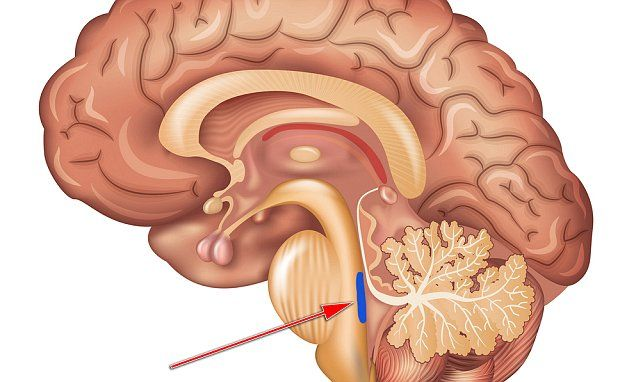 University of Southern California experts found a critical but vulnerable region in the brain, the locus coeruleus (pictured in blue), is subject to damage decades before symptoms appear.