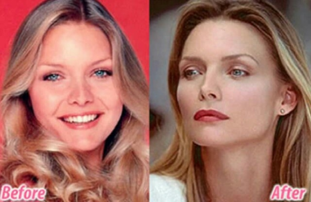 Michelle Pfeiffer before and after plastic surgery (28