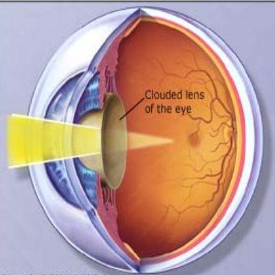 How To Prevent Diabetic Eye Problem | Eye Health ...