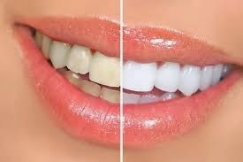 Visit our site http://newimagedentistryimplants.com for more information on  Periodontist Costa Mesa. A periodontist is a specialist who concentrates on the health and wellness of you's gums. They help to make certain that their patient's gums are equally healthy and balanced as their real teeth. Costa Mesa Periodontist plays an essential part in the lives of many individuals.