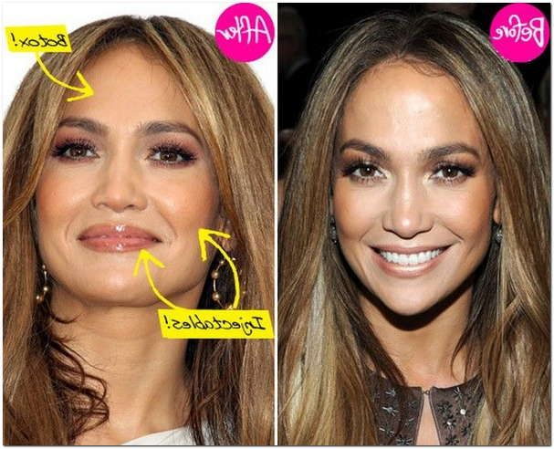 Jlo Face Plastic Surgery