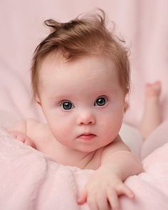 Beautiful Little Girl with Down Syndrome