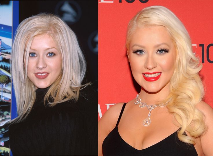 Christina Aguilera's Nose: Celebs Before and After Plastic Surgery, www.skinvitality.ca