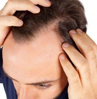 derma roller for hair loss