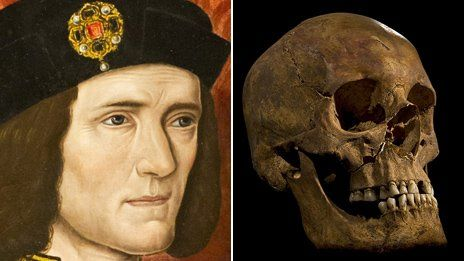 Richard III portrait compared to Greyfriars  skull. Richard III died at the Battle of Bosworth, aged 32.