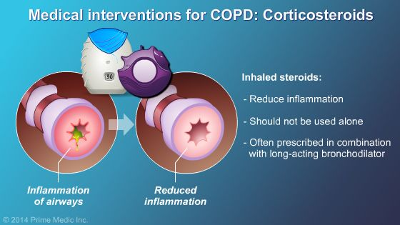 Corticosteroids for COPD