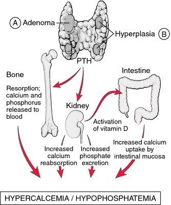 parathyroid hormone thesis This doctoral thesis was performed under the supervision of  and low phosphorus might be a result of a parathyroid hormone (pth)-like factor, produced and.