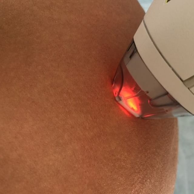 ✨ Erasing my stretch marks today at @kareplasticsurgery  This is my 2nd treatment  and I can't believe the results already  They have faded tremendously! ✨ For those of you asking what the laser does/feels like- YES it does hurt a bit (not too bad), and the laser leaves little red/brownish dots on the skin being treated. I zoomed in really close this time with the video so you guys can see them. The area is then red for 2 days- and back to normal! Totally worth erasing stretch marks...