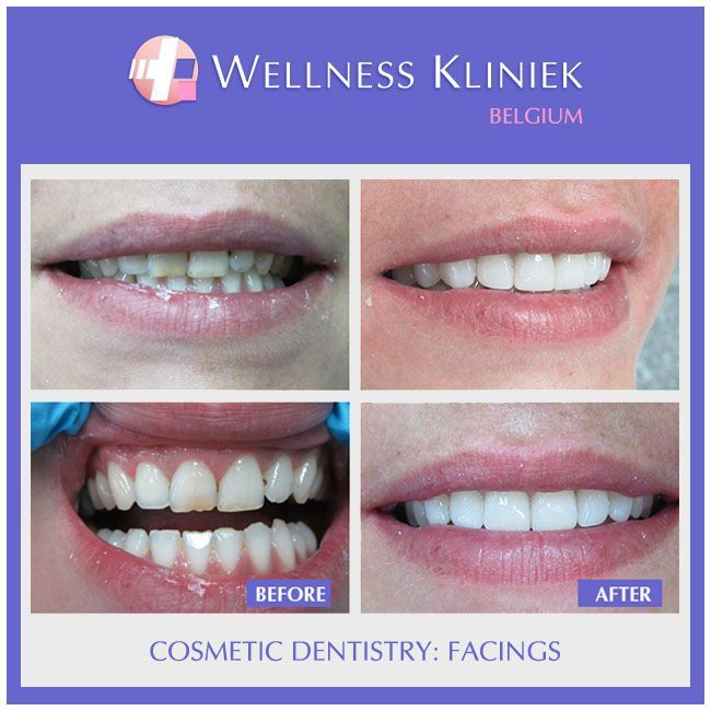 Your smile is our priority. This woman was fitted with 10 E-max facings. Cost: ….