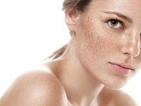 Przebarwienia skóry to dość częsty problem, z którym borykają się kobiety. Przebarwienia najczęściej pojawiają się na twarzy, dekolcie a także dłoniach. Jest kilka przyczyn ich powstania. Postaramy się wyjaśnić skąd przebarwienia się biorą, jakie kremy pomogą nam w ich rozjaśnianiu i jak zapobiegać powstawaniu przebarwień. Przebarwienia co do zasady nie stanowią zagrożenia, natomiast stanowią często …