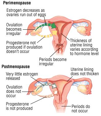menopause perimenopause and post menopause | Menopause And Perimenopause Guide: Causes, Symptoms and Treatment ...