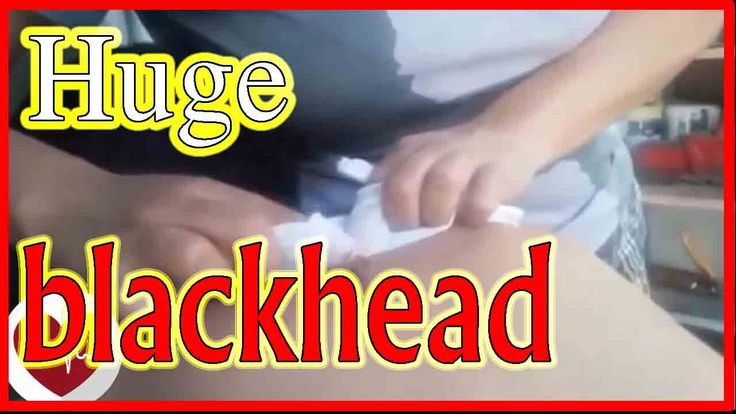 Huge blackhead on back removal. The biggest blackhead ever - All pimples...