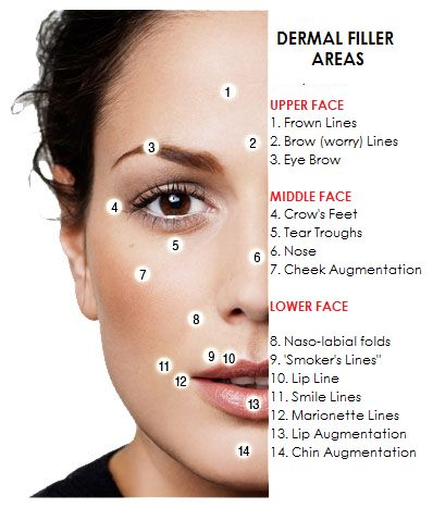 A blog about wrinkle fillers and muscle relaxing injections. News and updates on the various products for Wrinkle Injections
