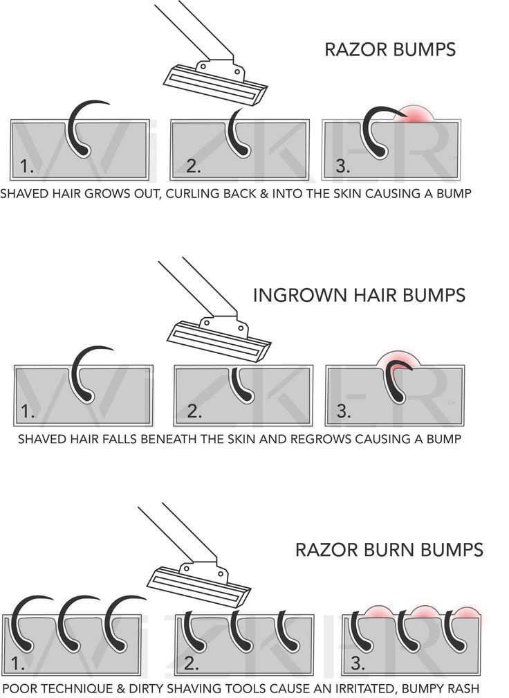 how to avoid shaving bumps