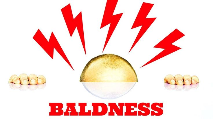 Cures For Male Pattern Baldness Naturally Male Pattern Baldness Cure Discovered https://youtu.be/sa2tNEhs3V4