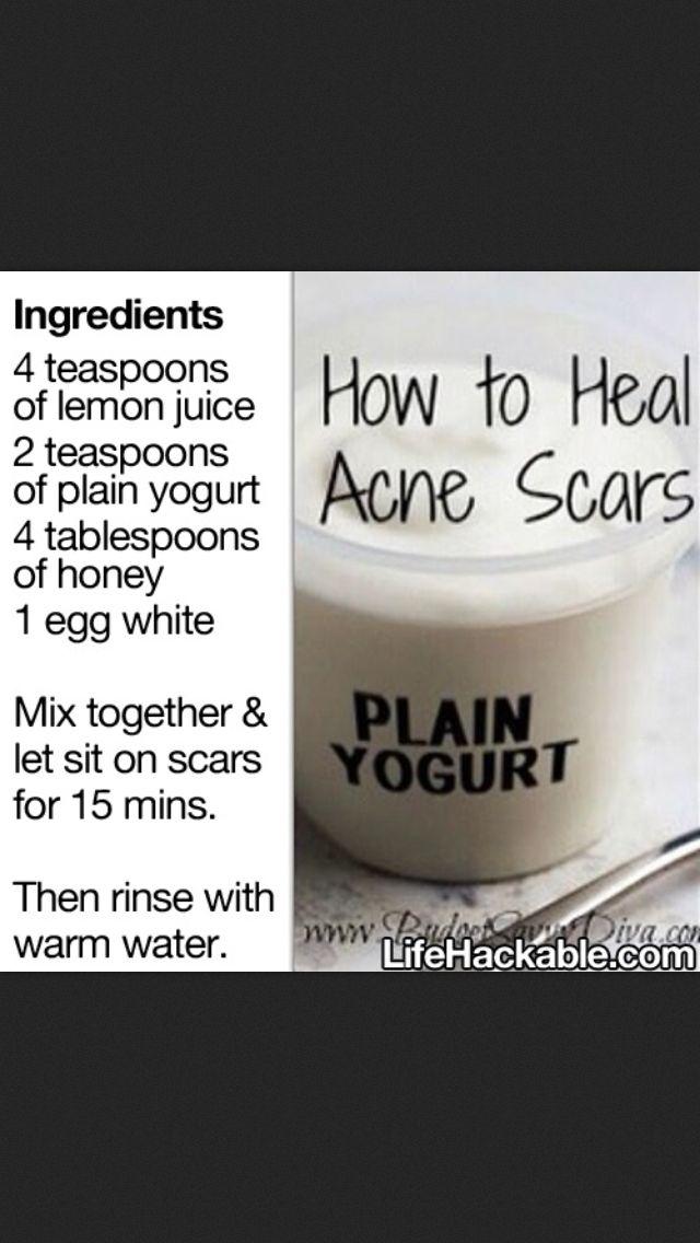 Acne Scar Remover