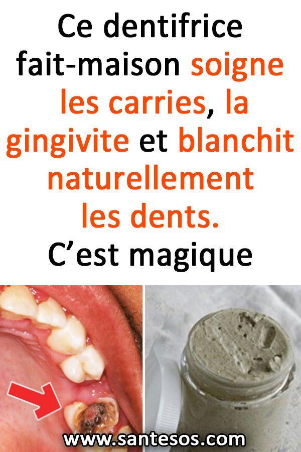 ce dentifrice fait maison soigne les carries la gingivite. Black Bedroom Furniture Sets. Home Design Ideas
