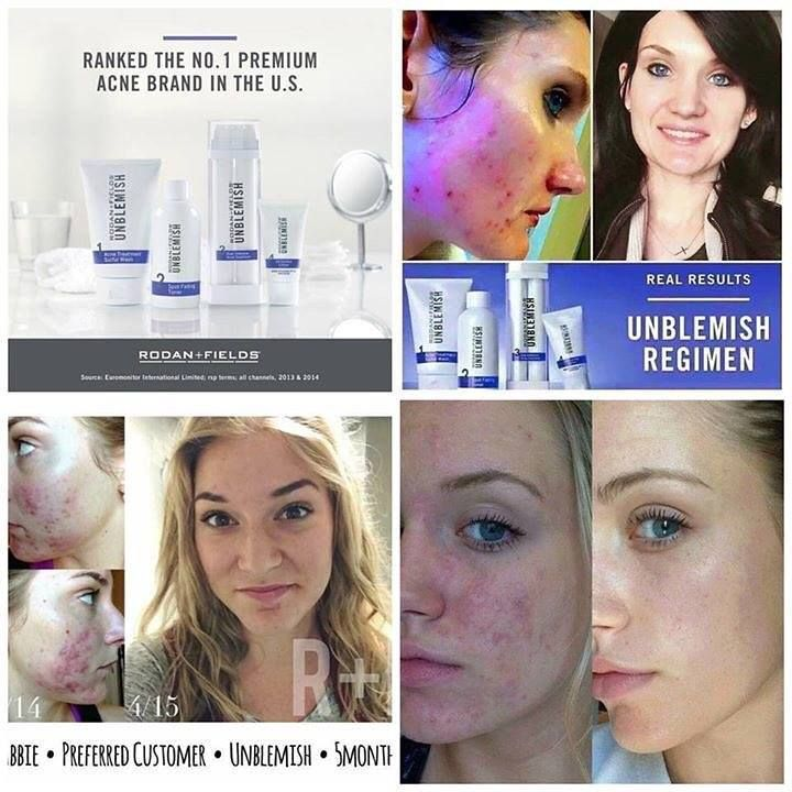 acne adult clear up
