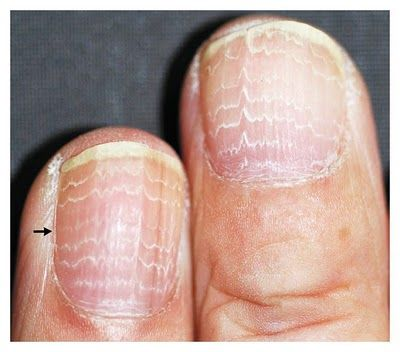 Beau's lines. Cytotoxic chemotherapy agents can induce the temporary arrest of proliferative function of the nail matrix, which may be manifested as multiple Beau's lines in the nail plate. This nail pattern can provide insight into the interval between and intensity of chemotherapy cycles.