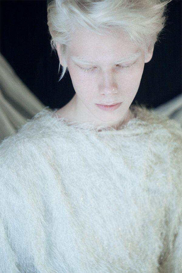 #albino by Анна Данилова, via Behance #albinism