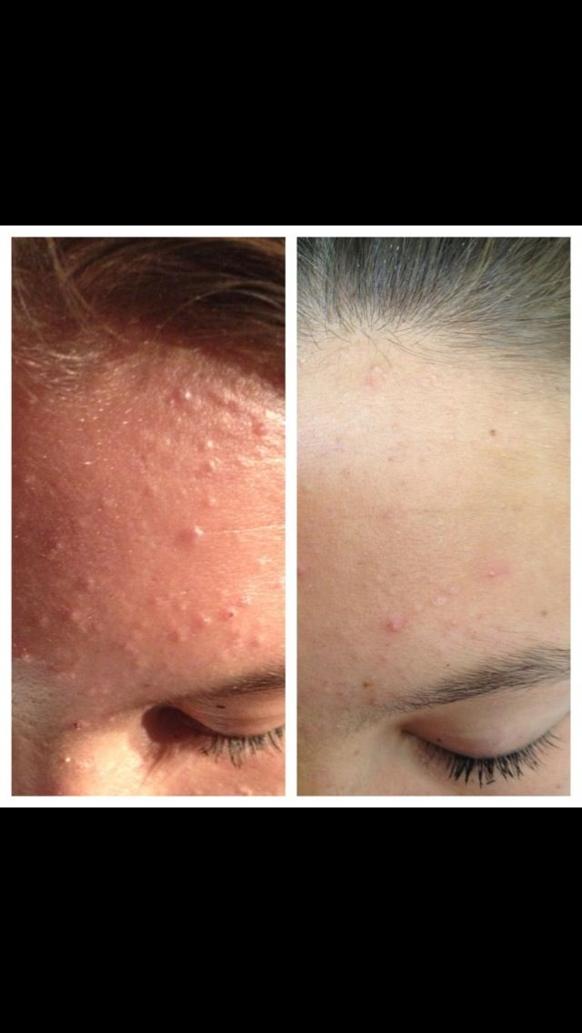 Nerium Before and After. REAL Acne results! www.wkensinger.theneriumlook.com