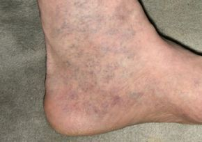 Почти каждый из нас знает, что такое варикоз. Эти «паучьи» сетки появляются на ногах, на руках, а иногда и там, где им быть вообще не следовало.Однако победное средство над варикозом есть дома у кажд…