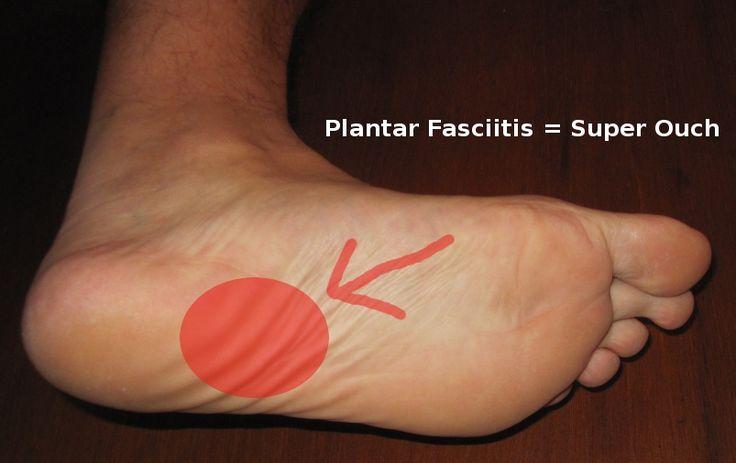 Plantar Fasciitis Relief   Plantar Fasciitis Treatment – Heal Your Heel Pain!