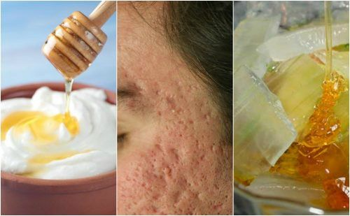¿El acné dejó marcas en tu rostro? Atenúalas con estas 5 mascarillas naturales - Mejor con Salud