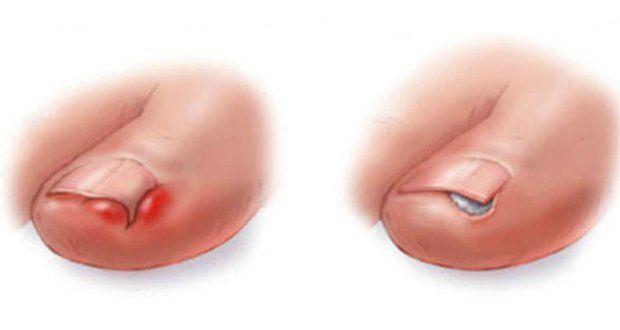 Voici comment se débarrasser d'un ongle incarné sans chirurgie