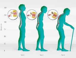 Stooped posture due to osteoporosis Osteoporosis is the result of many different things, but one common cause in women is the fall in the hormone Oestrogen