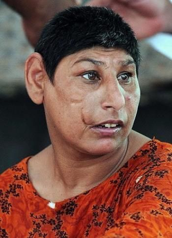 """Microcephaly. Individuals with this condition India are stigmatised as """"rat people"""""""