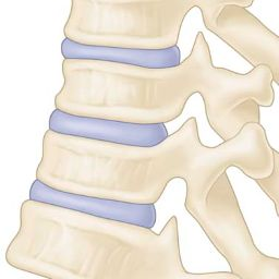 Image: Drawings of thoracic spine before & after repeated laminectomy…