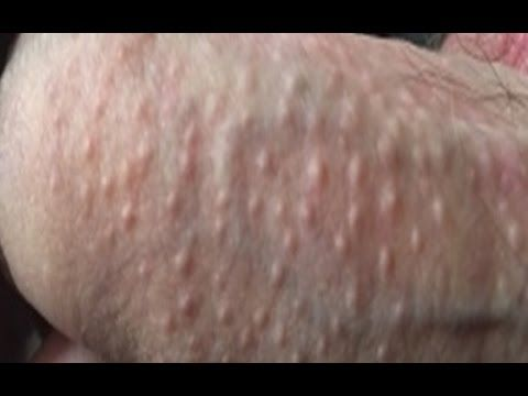Sweat Rash On Penis 25