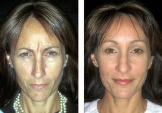 Want To Remove Forehead Lines Fast And Without Botox? Carry Out These Face Gymnastics Exercises