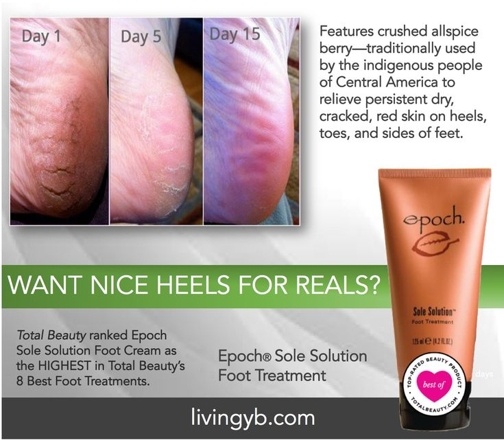 Epoch® Sole Solution Foot Treatment features crushed allspice berry (Pimenta dioica)— traditionally used by the indigenous people of Central America to relieve persistent dry, cracked, red skin on heels, toes, and sides of feet. So much more than a moisturizer, Epoch® Sole Solution restores healthy looking heels, toes, and soles. What are you waiting for? Go ahead and use it!.