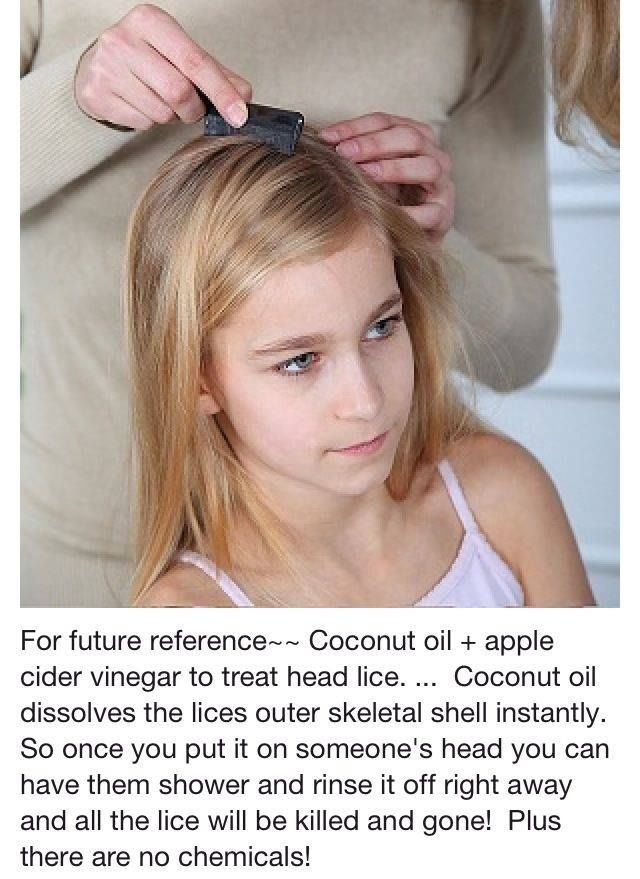 Use equal parts coconut oil and Bragg Apple Cider Vinegar to kill head lice OR coat your hair thoroughly with a bottle of apple cider vinegar. Allow the apple cider vinegar to dry completely. Coat your hair thoroughly with a jar of coconut oil. Cover with a shower cap or towel for 3 – 5 hours. Comb your hair to remove the dead lice and eggs.