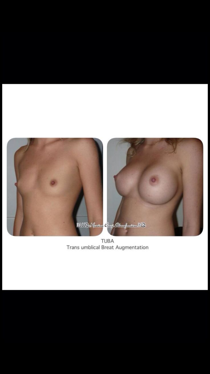 Breast Augmentation TUBA