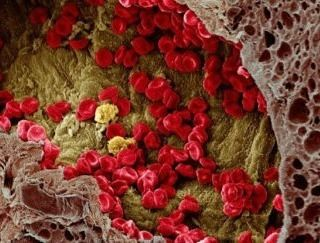 Scientists have finally figured out how #cancer spreads through the bloodstream.  And that means we might be able to stop it.