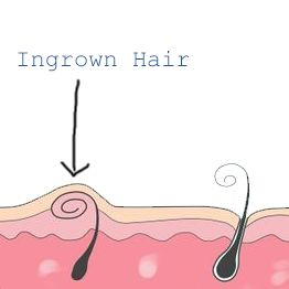 How to remove an ingrown hair on your bikini line Clear instructions for removing an ingrown hair from your bikini line, and tips to prevent it in future. http://www.allthingsvagina.com/how-to-remove-an-ingrown-hair-on-your-bikini-line/